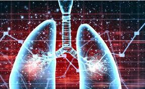 12-4-16肺癌