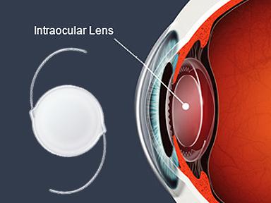 intraocular_lens9-29